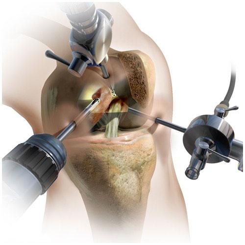 Можно ли заниматься спортом после операции межпозвонковой грыжи