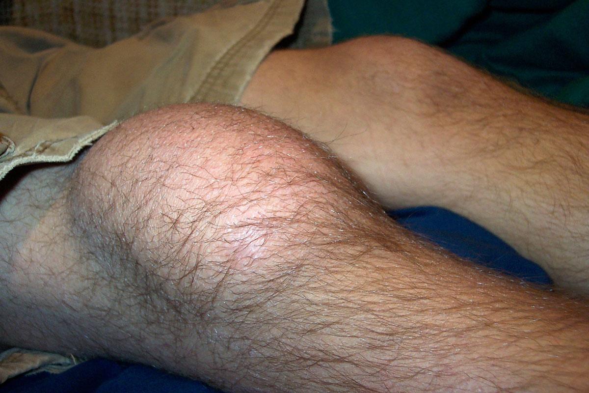 Как правильно лечить бурсит колена: симптомы, признаки, реабилитация