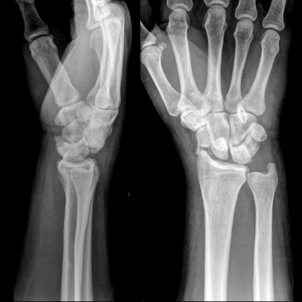 Не вправили сустав при переломе осложнения после ангины на суставы у детей
