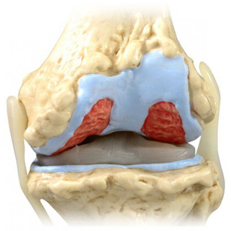 Как лечить отложения солей коленом суставе боль в правом плечевом и локтевом суставе
