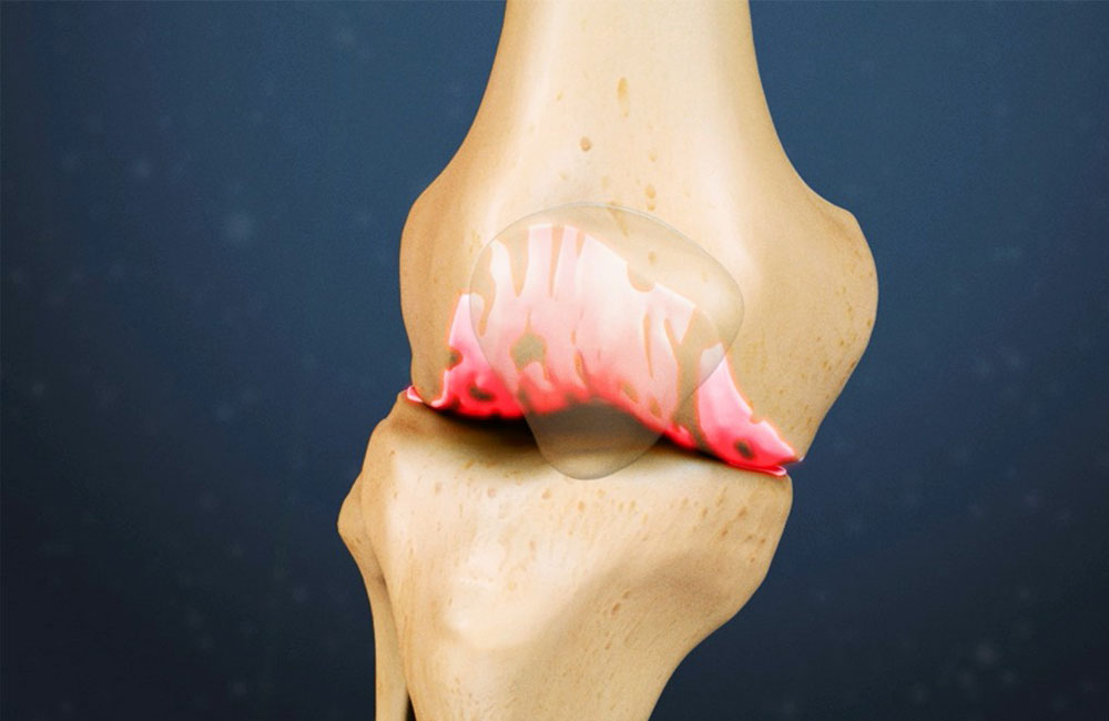 Как лечить отложения солей коленом суставе у меня опухла вена на кистевом суставе