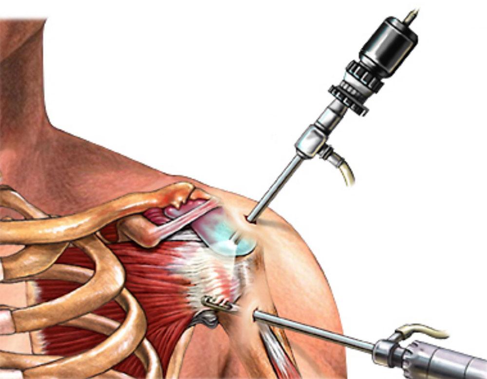 Лечение бурсита плечевого сустава, методы традиционной и народной ...