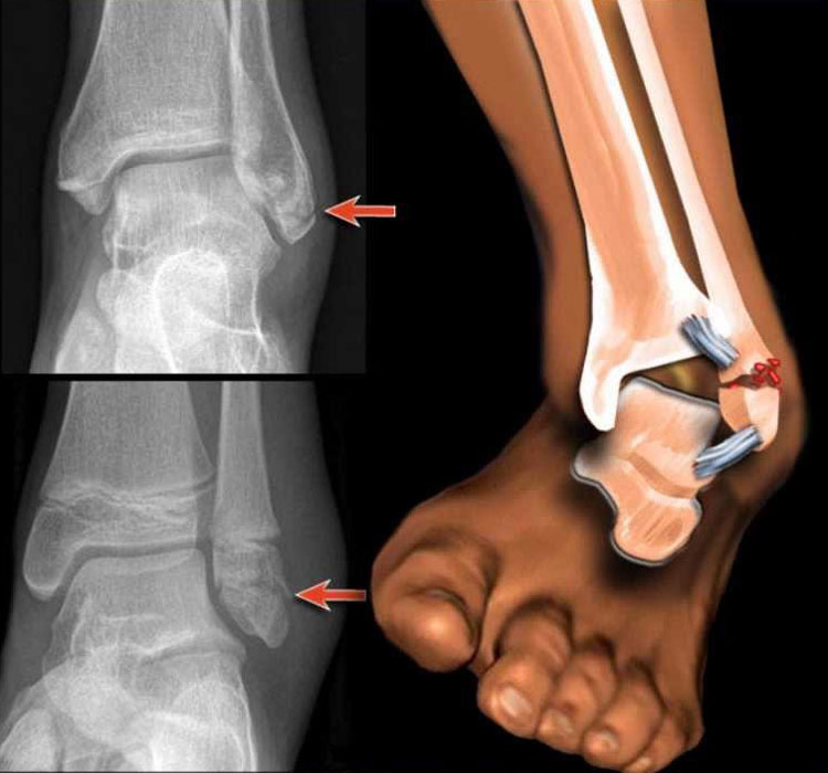 Ложный сустав голеностопа лечение врутрисуставная инекция в тазобедренный сустав видио
