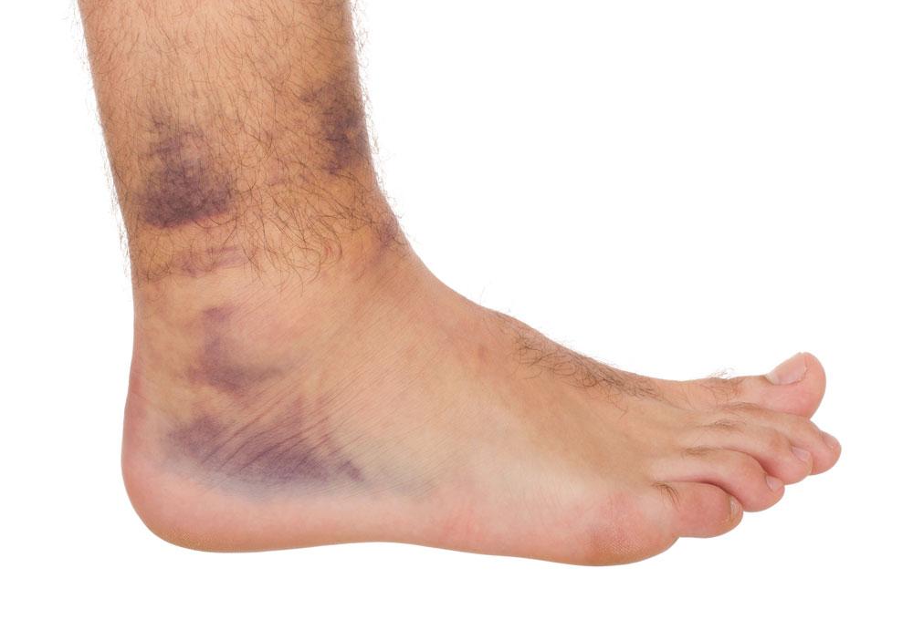 Симптомы и лечение вывиха голеностопа