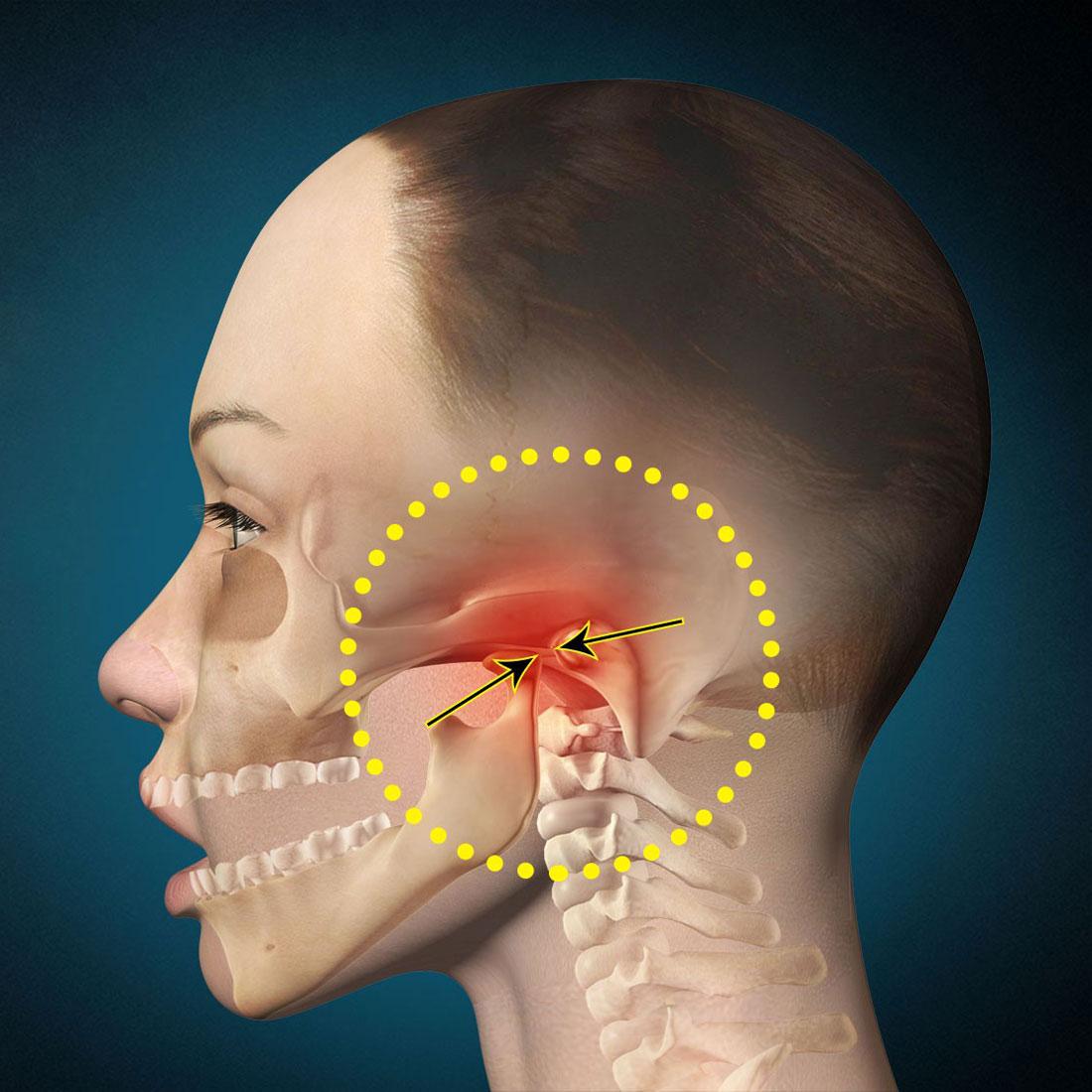 Разрыв или смещение суставного диска височно-нижнечелюстного сустава повреждение связок голеностопного сустава симптомы