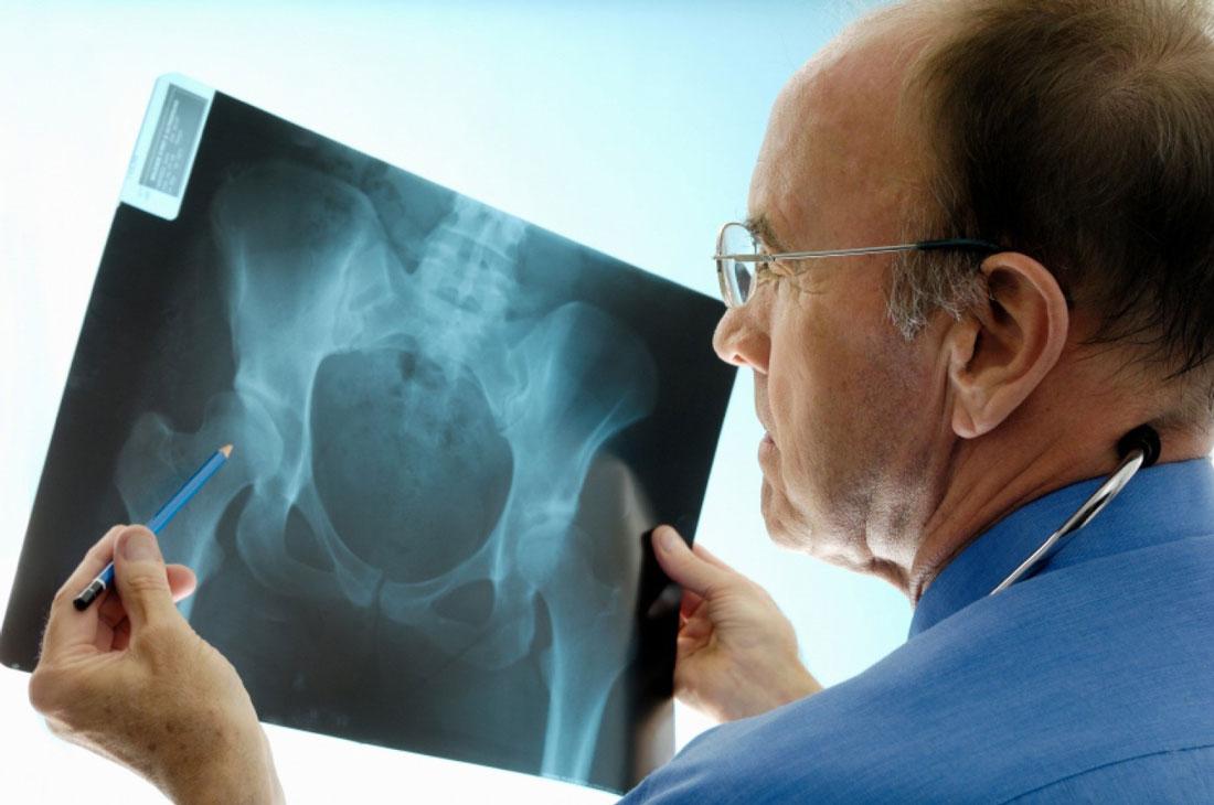 Остеохондроз шейный отдел боль в позвонке