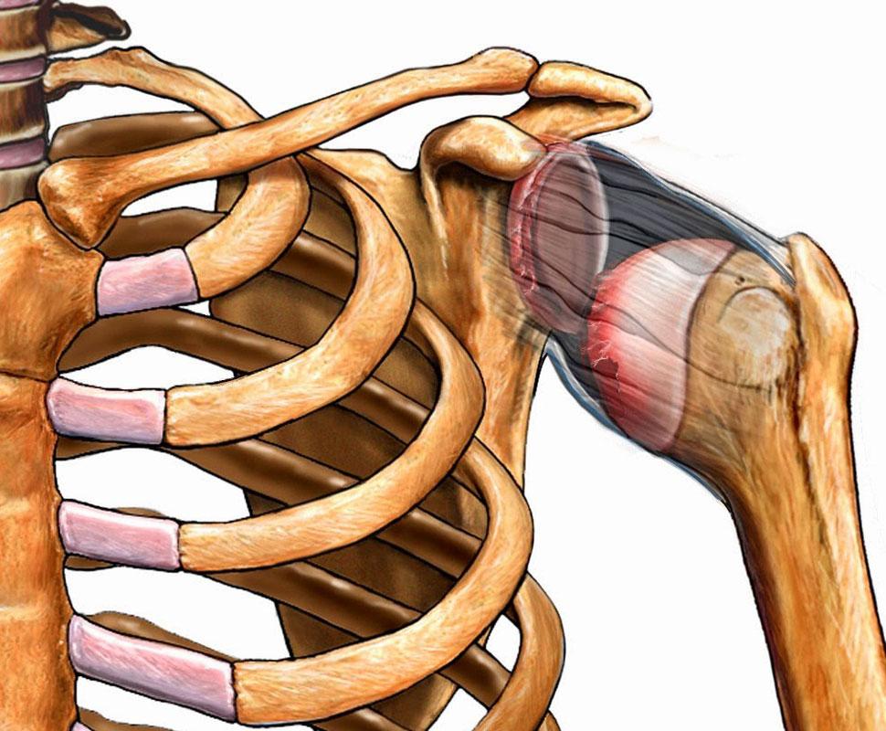 Плечевой сустав вправить лекарства при лечении суставов