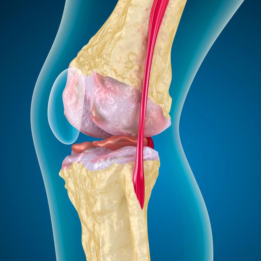 Блокада новокаиновая коленного сустава разрыв связок коленного сустава последствия период восстановления