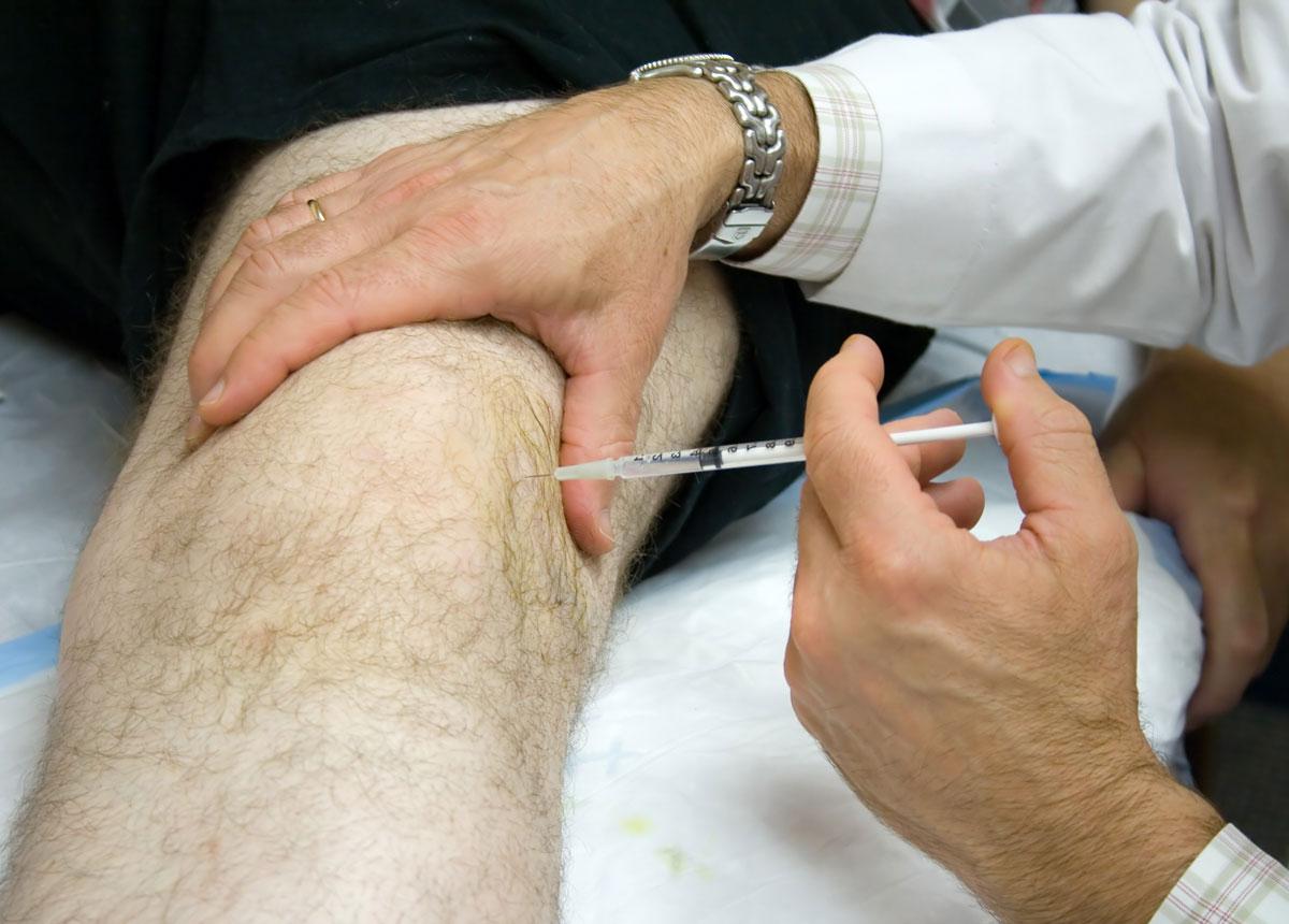 Блокада связок коленного сустава долак внутрисуставно плюсню