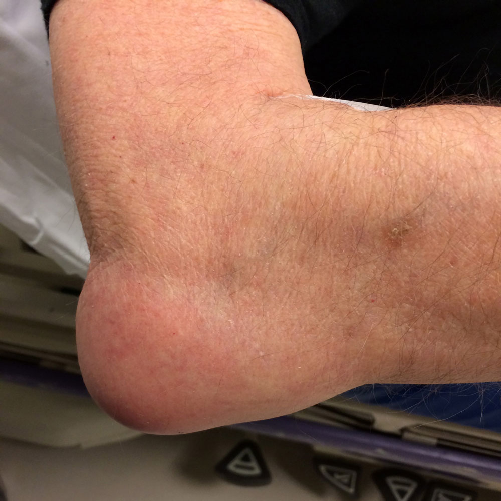 Бурсит локтевого сустава лечение врач немецкая распорка для суставов