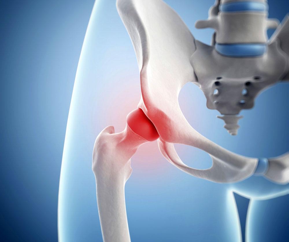 Народные методы лечения бурсита тазобедренного сустава деформирующий остеоартроз коленных суставов мкб 10