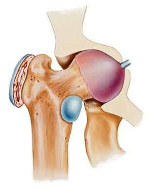 Сумки тазобедренного сустава анатомия суставы верхней конечности человека