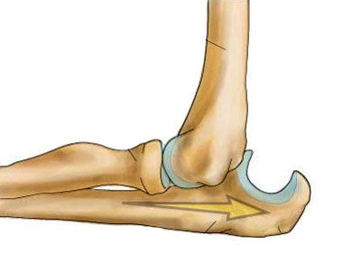 Вывих локтевого сустава у ребенка 6 месяцев локтевой сустав по форме суставной поверхности является