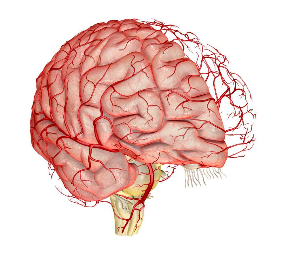 Санаторий атеросклероз сосудов головного мозга