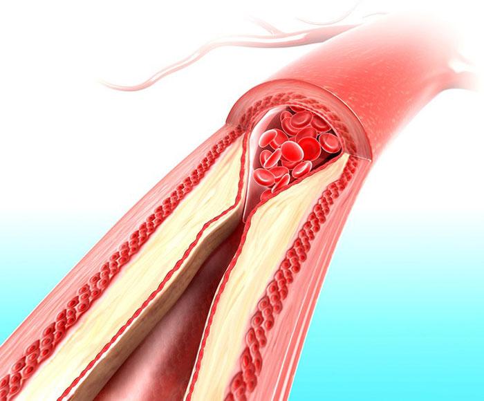 Уровень холестерина крови норма для женщин