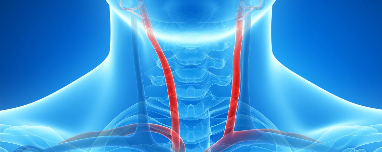 Почему возникает, насколько опасен, и как лечить стеноз сонной артерии