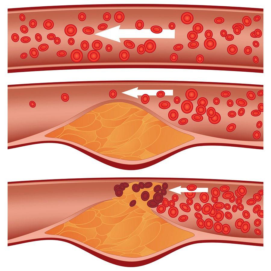 Копченые продукты и их холестерин