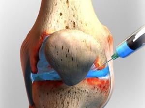 Откачка жидкости из коленного сустава