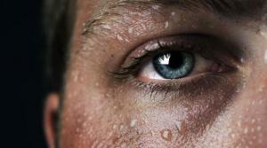Всд и гипергидроз как лечить