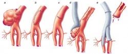 удаление аневризмы на артерии