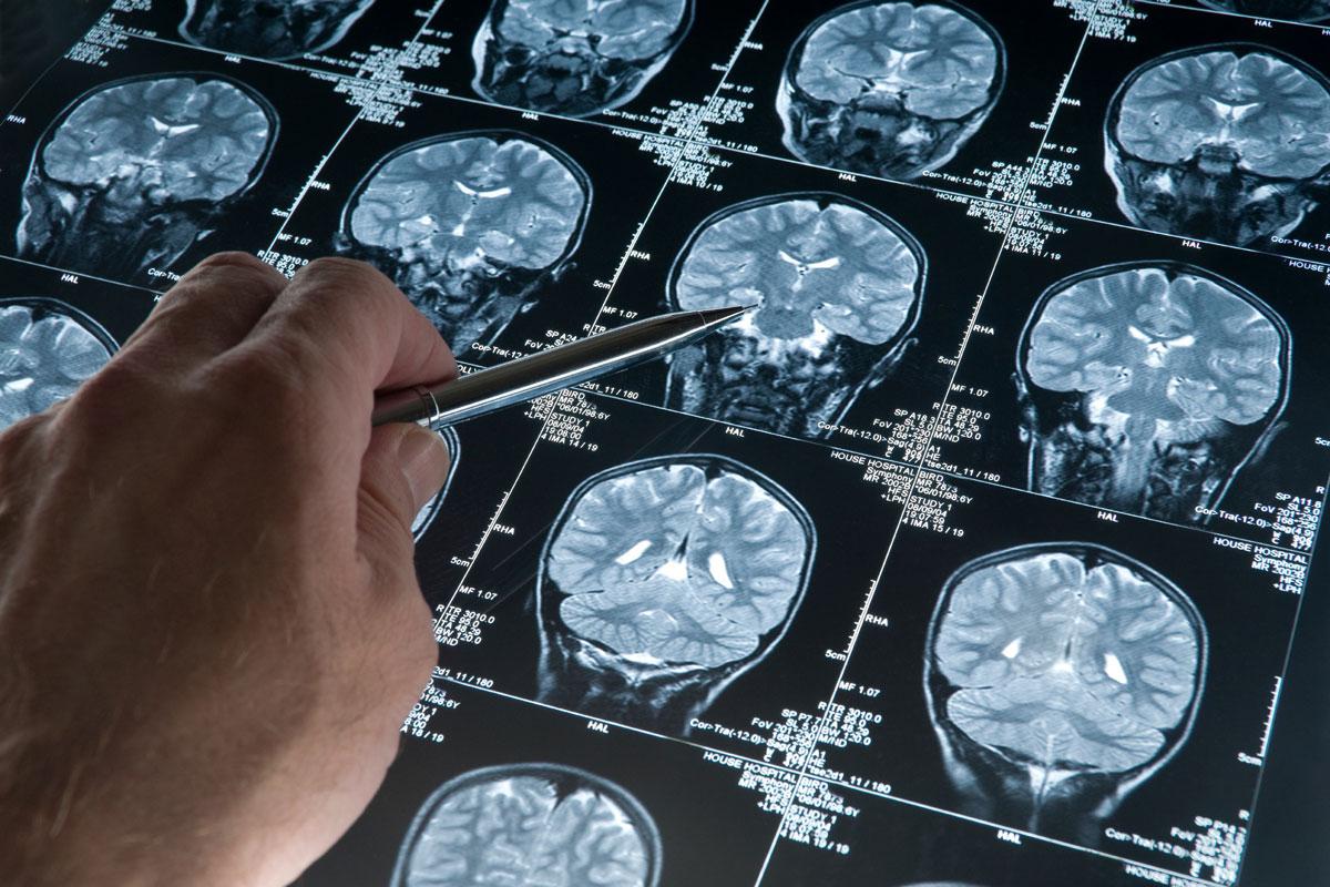 Инфаркт мозга вызванный эмболией мозговых артерий