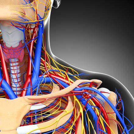 Стеноз сосудов шеи, деформация шейных сосудов со стенозированием