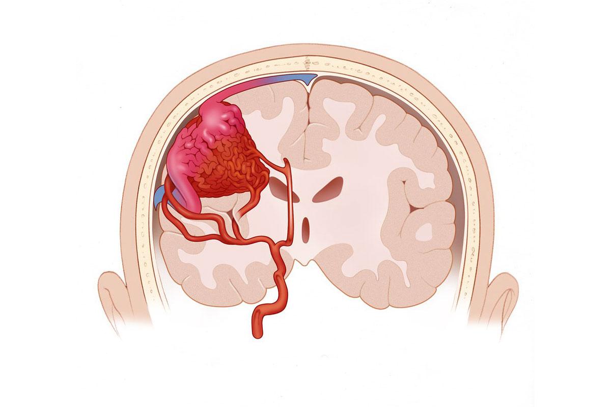 Симптомы и лечение атеросклероза сосудов головного мозга (код по МКБ 10)