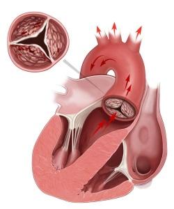 так выглядит стеноз сердца