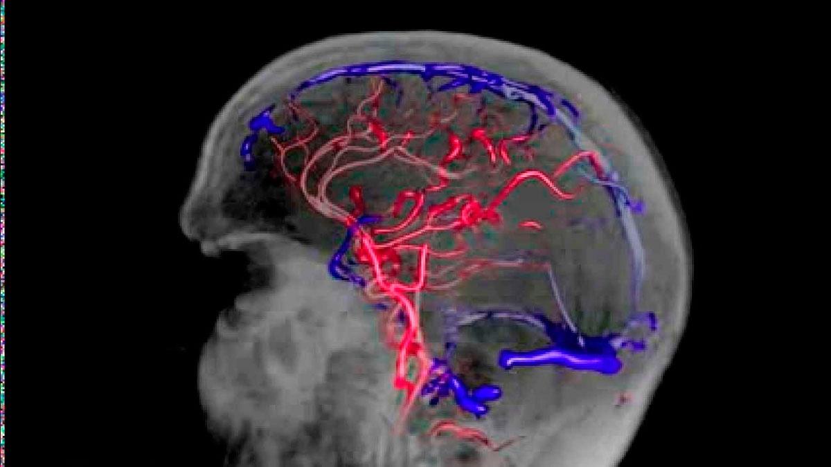 Нарушение венозного оттока головного мозга, симптомы, лечение ...