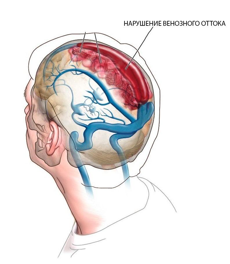 Венозный отток затруднен при шейном остеохондрозе