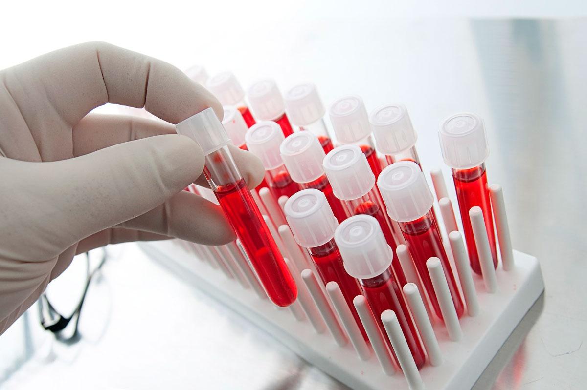 Анализ крови рой 6 фотография