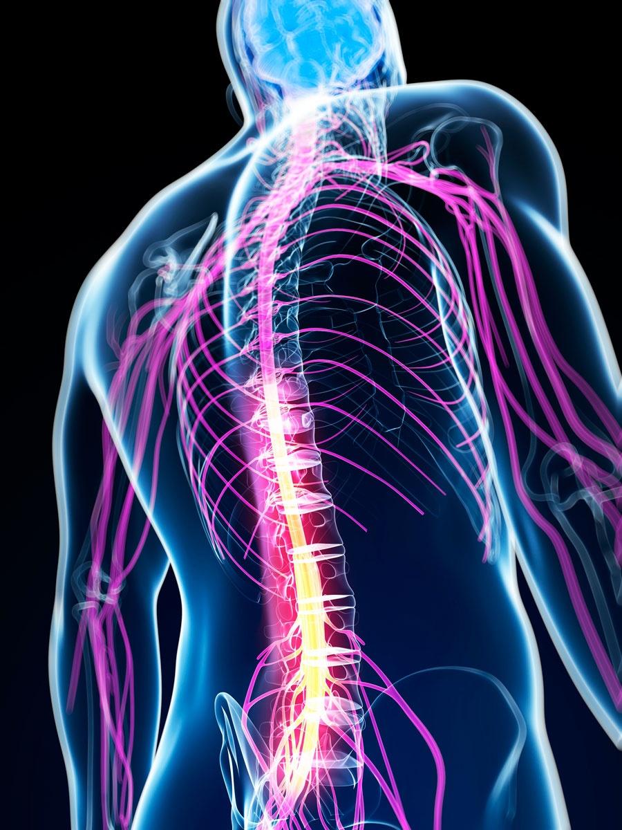 Картинки по запросу электрической стимуляции спинного мозга