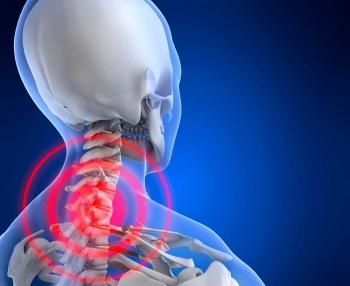 остеохондроз шейного отдела вызывает сильные головные боли