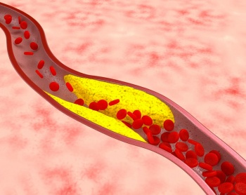 атеросклероз одна из частых причин вызывающих нарушения