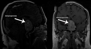 микроаденома на снимке МРТ
