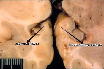 Отек головного мозга – что это такое, причины, проявления, последствия