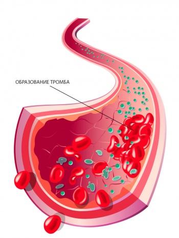 тромбообразование одна из самых распространенных причин кислородного голодания мозговых тканей