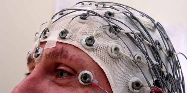 Ээг головного мозга как делают