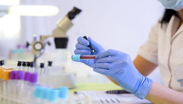 проверка крови на результаты ПСА