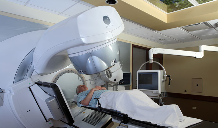 проведение радиотерапии на простату