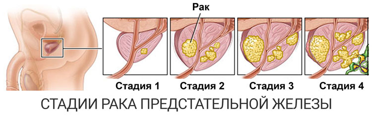 внешний вид простаты на разных стадиях онкозаболевания