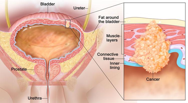 распространение раковых клеток на мочевой пузырь