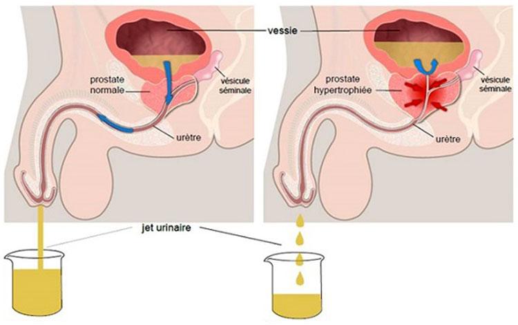 Кровь и простатит лечение простатита виагрой