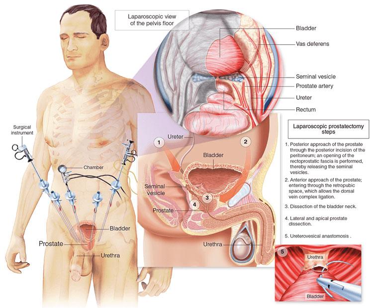 Лапароскопическая операция по удалению аденомы простаты последствия