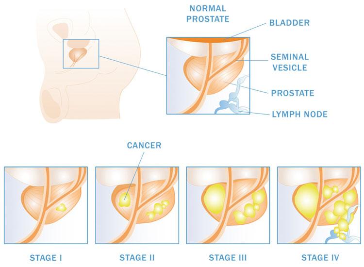изменения в простате на разных стадиях онкологии