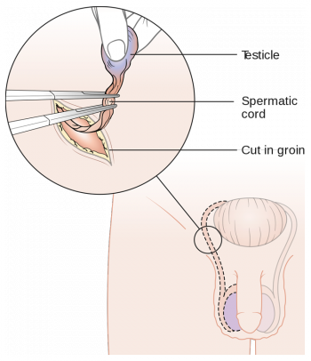 схема удаления яичек