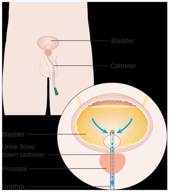 Выведение трубки из мочевого пузыря при аденоме простаты