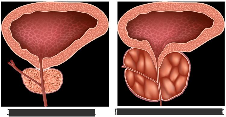 внешний вид здоровой простаты и пораженной гиперплазией