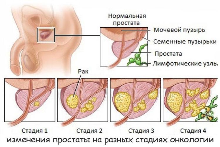 изменения предстательной железы на разных стадиях онкологии