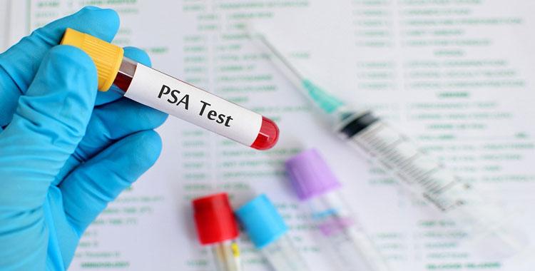 общий анализ крови pct